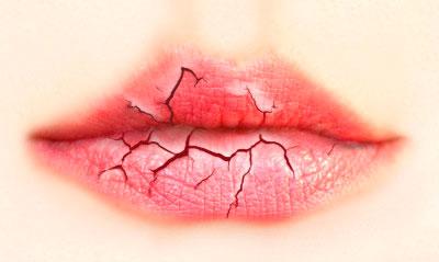 поражение губ грибком