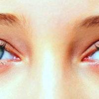 Симптомы и лечение кандидоза глаз